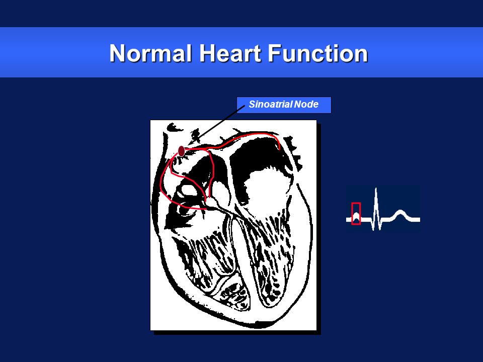 Normal Heart Function Sinoatrial Node