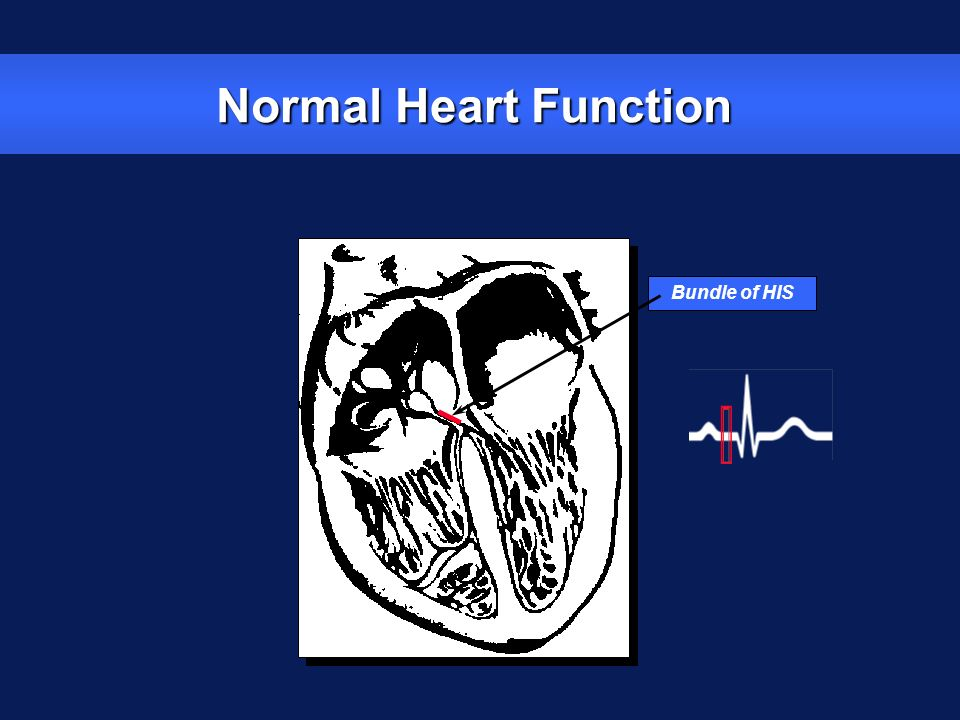 Normal Heart Function Bundle of HIS