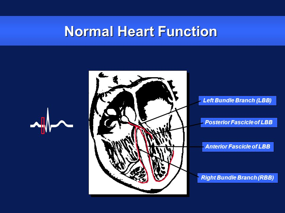 Normal Heart Function Left Bundle Branch (LBB)