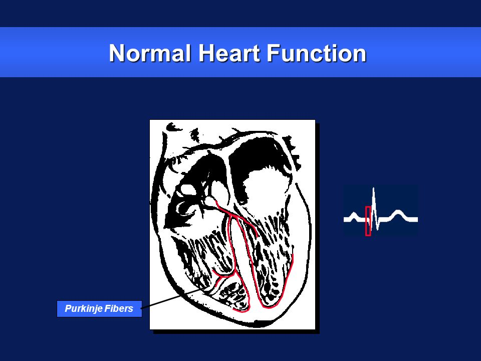 Normal Heart Function Purkinje Fibers