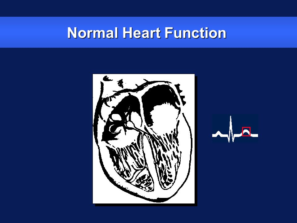 Normal Heart Function The T wave on the ECG represents the repolarization and relaxation of the ventricles.
