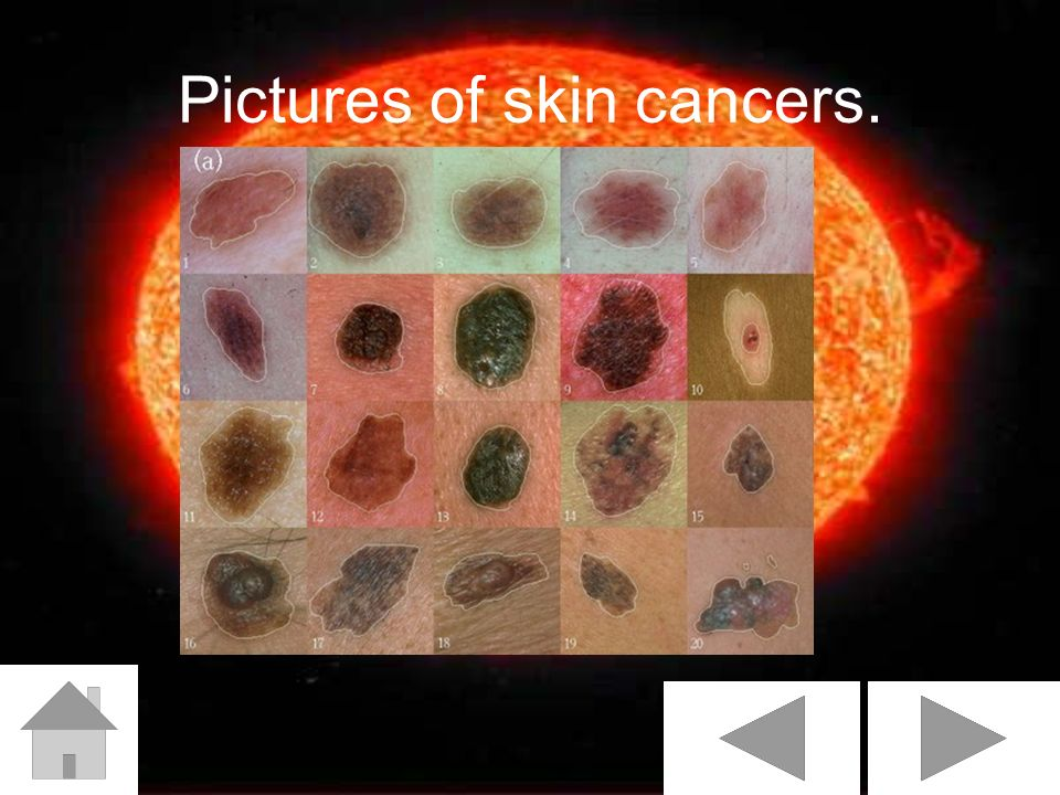 Pictures of skin cancers.