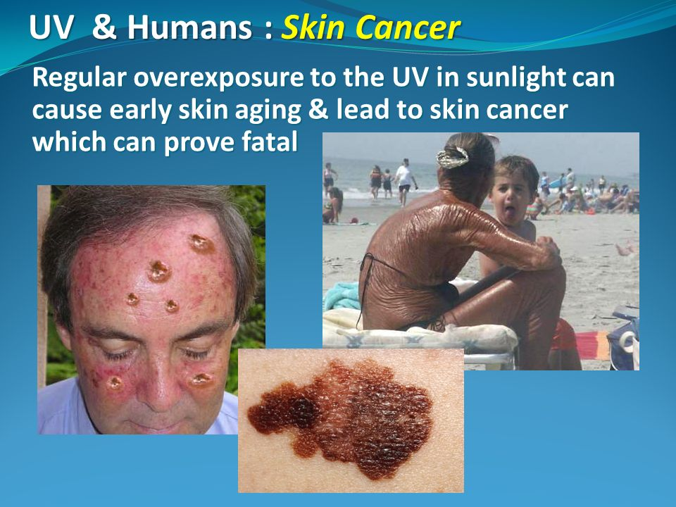 UV & Humans : Skin Cancer