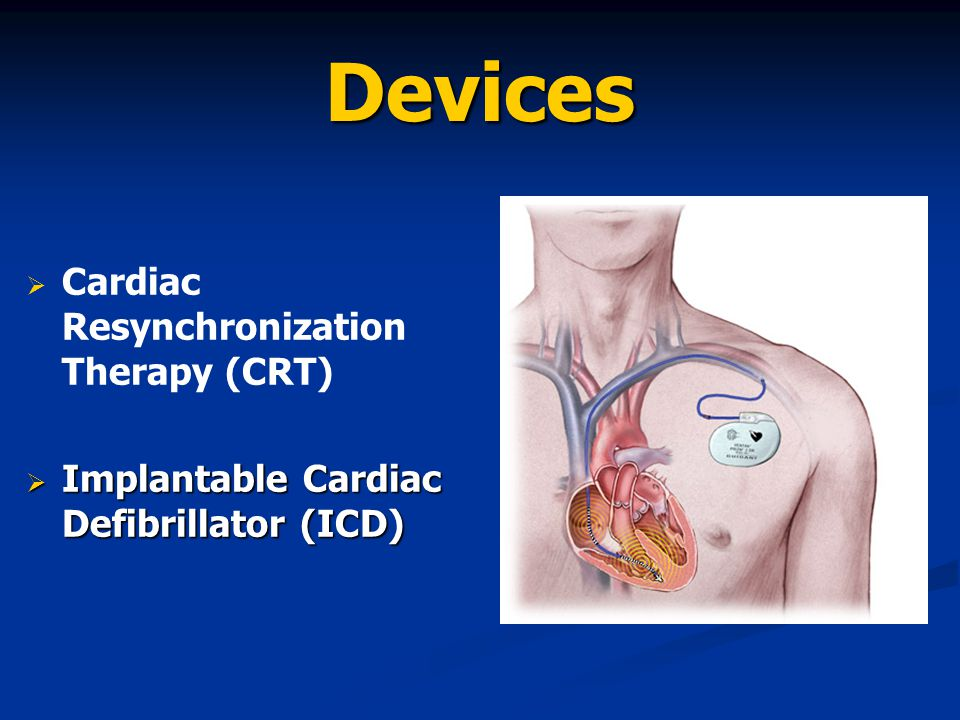 Devices Cardiac Resynchronization Therapy (CRT)