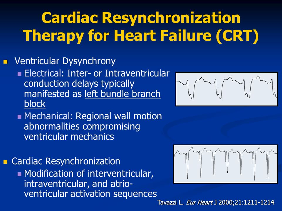 Cardiac Resynchronization Therapy for Heart Failure (CRT)