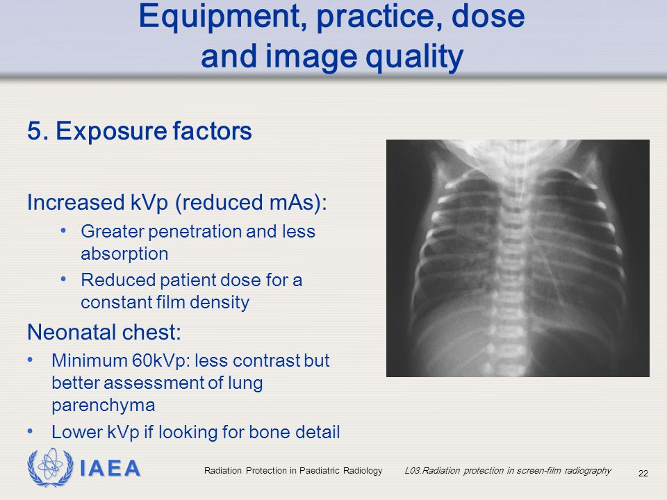 Good penetration vs exposure in radiology have hit