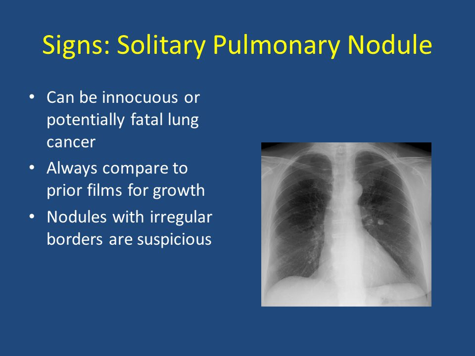 Signs: Solitary Pulmonary Nodule