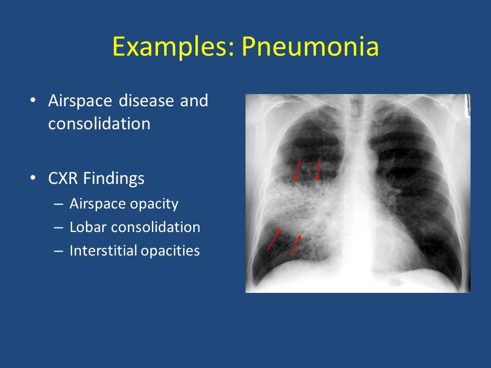 Examples: Pneumonia Airspace disease and consolidation CXR Findings