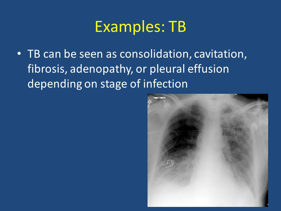 Examples: TB TB can be seen as consolidation, cavitation, fibrosis, adenopathy, or pleural effusion depending on stage of infection.