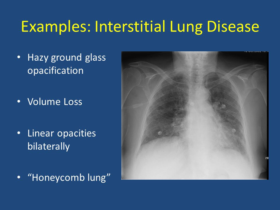 Examples: Interstitial Lung Disease