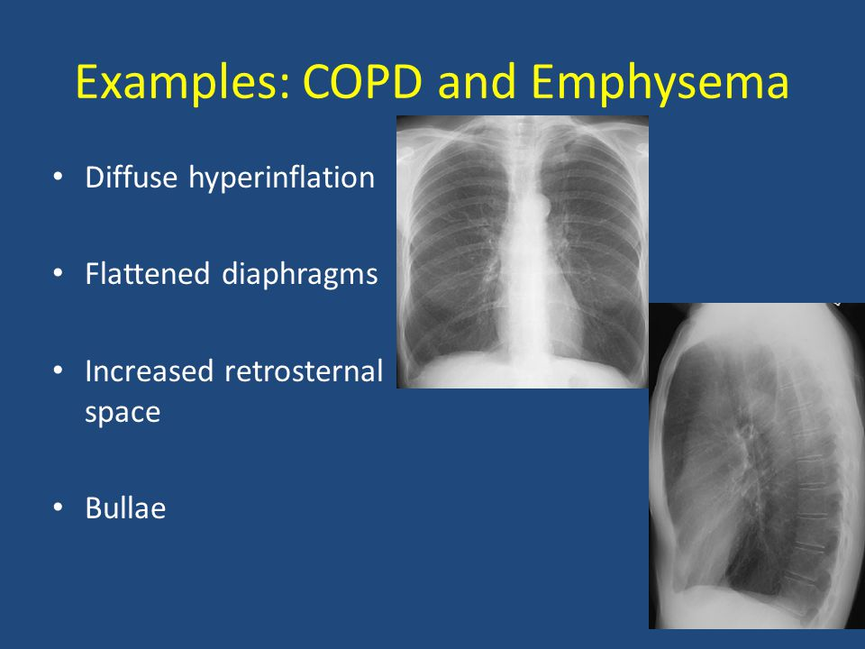 Examples: COPD and Emphysema