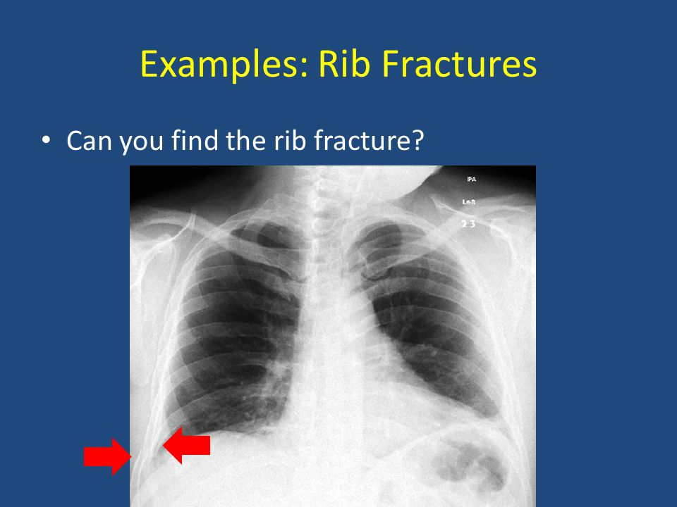 Examples: Rib Fractures