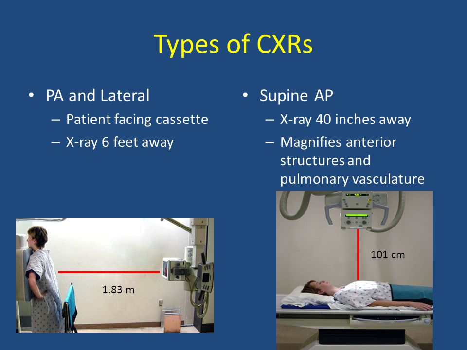 Types of CXRs PA and Lateral Supine AP Patient facing cassette