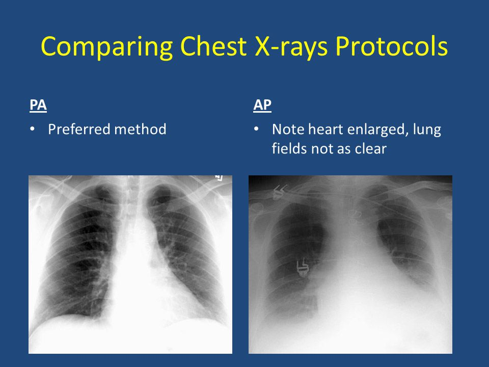 Comparing Chest X-rays Protocols