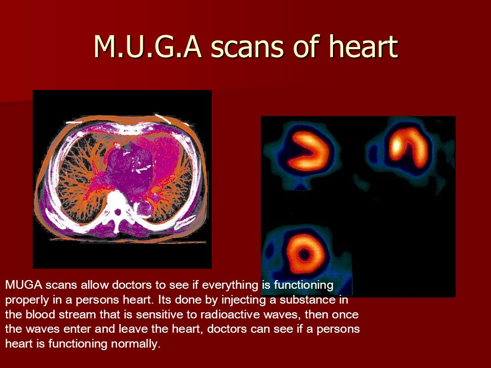 M.U.G.A scans of heart