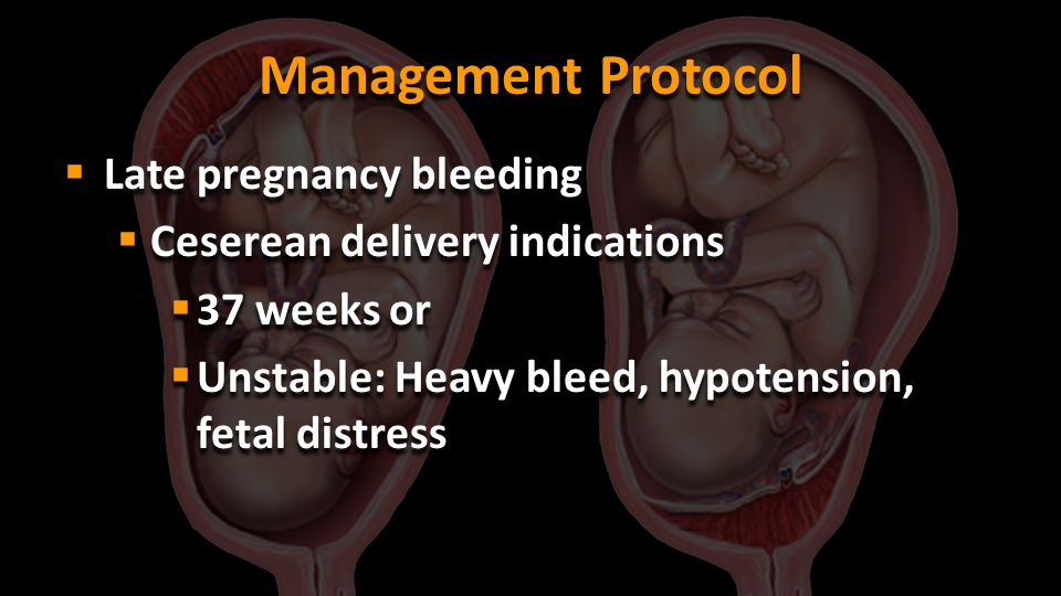 Management Protocol Late pregnancy bleeding
