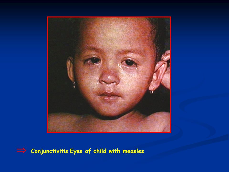  Conjunctivitis Eyes of child with measles