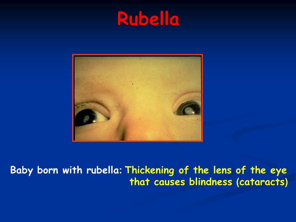 Rubella Baby born with rubella: Thickening of the lens of the eye