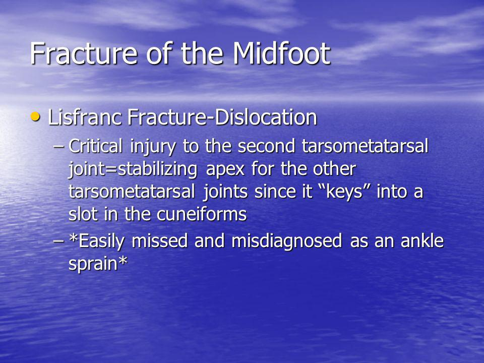 Fracture of the Midfoot