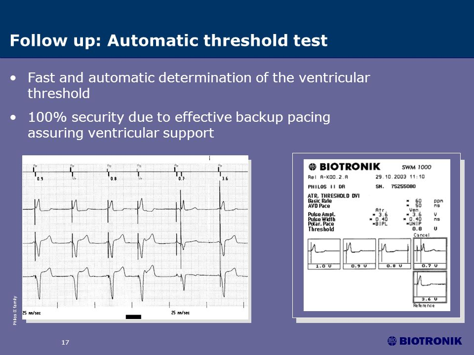 Follow up: Automatic threshold test