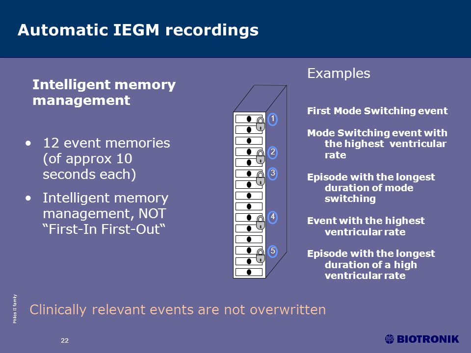 Automatic IEGM recordings