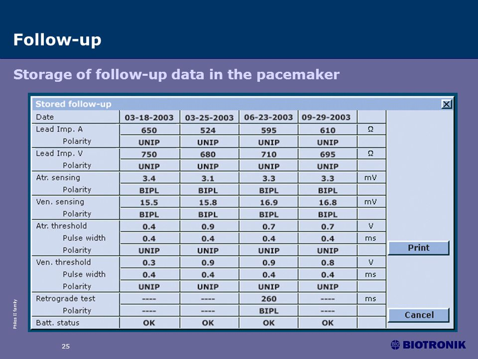 Follow-up Storage of follow-up data in the pacemaker 25