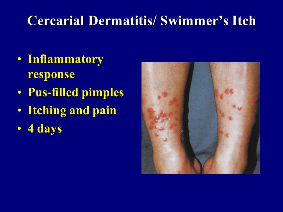 Cercarial Dermatitis/ Swimmer's Itch