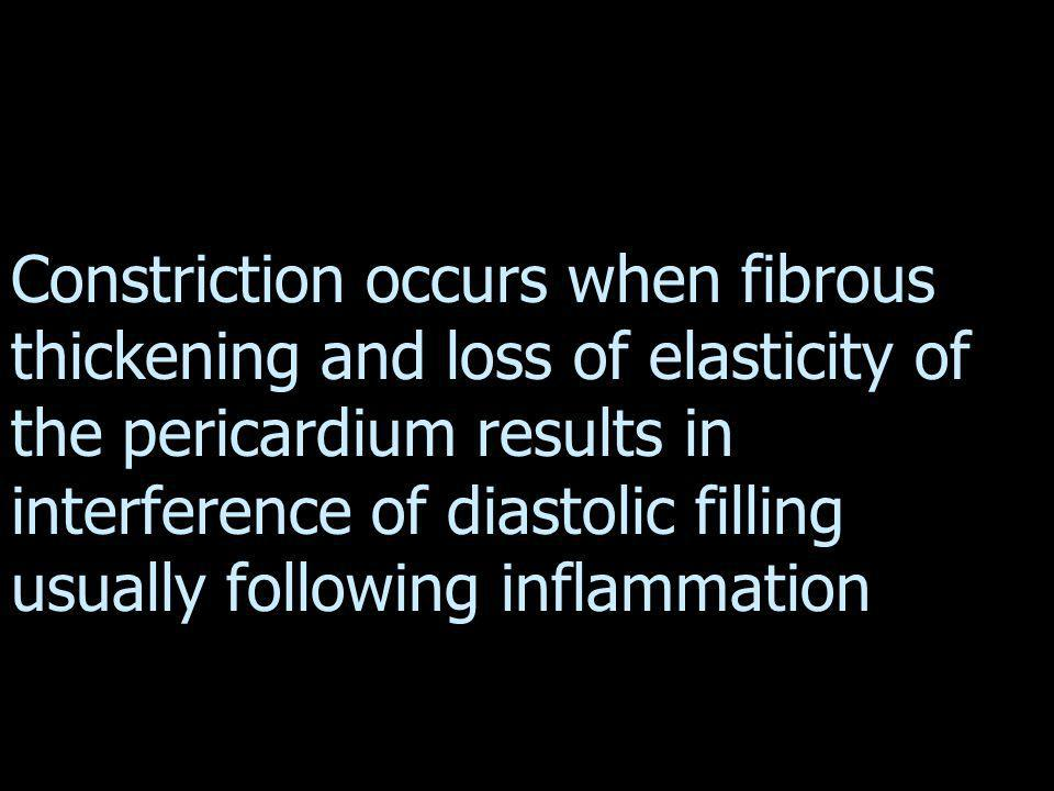 Constriction occurs when fibrous thickening and loss of elasticity of the pericardium results in interference of diastolic filling usually following inflammation