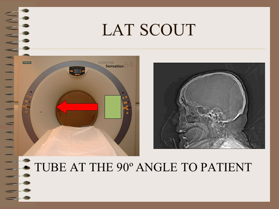 LAT SCOUT TUBE AT THE 90º ANGLE TO PATIENT
