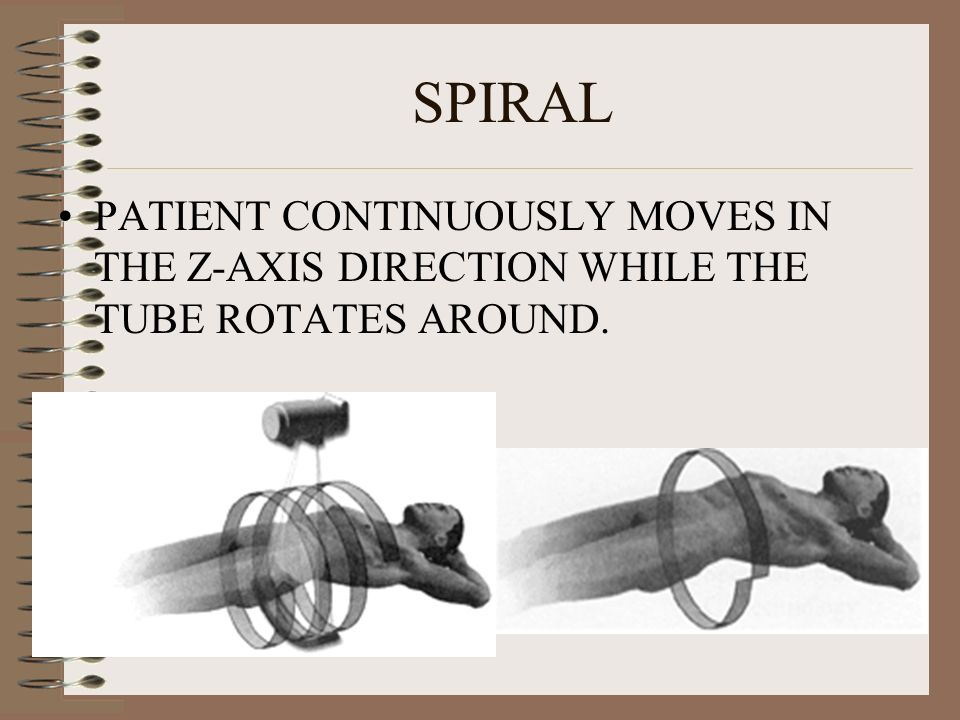 SPIRAL PATIENT CONTINUOUSLY MOVES IN THE Z-AXIS DIRECTION WHILE THE TUBE ROTATES AROUND.