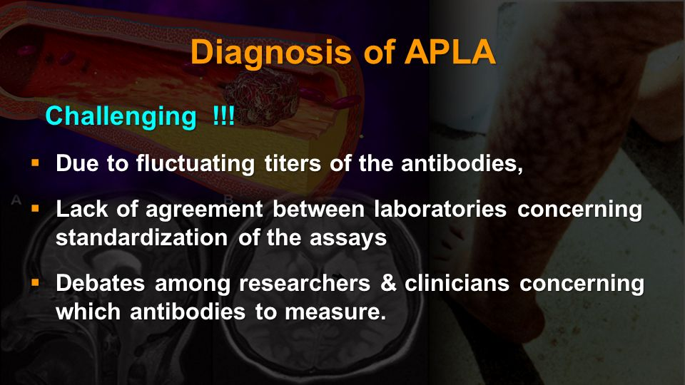 Diagnosis of APLA Challenging !!!