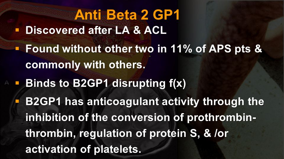 Anti Beta 2 GP1 Discovered after LA & ACL