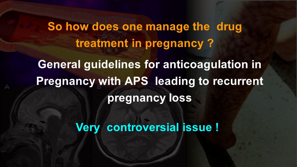 So how does one manage the drug treatment in pregnancy
