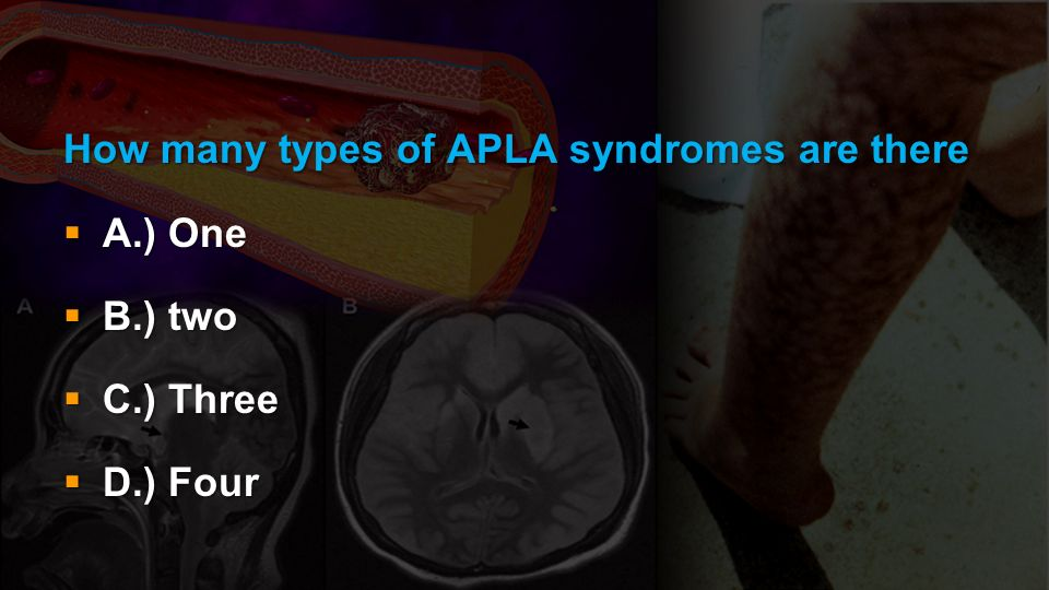 How many types of APLA syndromes are there