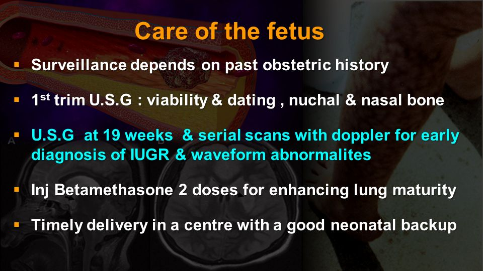 Care of the fetus Surveillance depends on past obstetric history