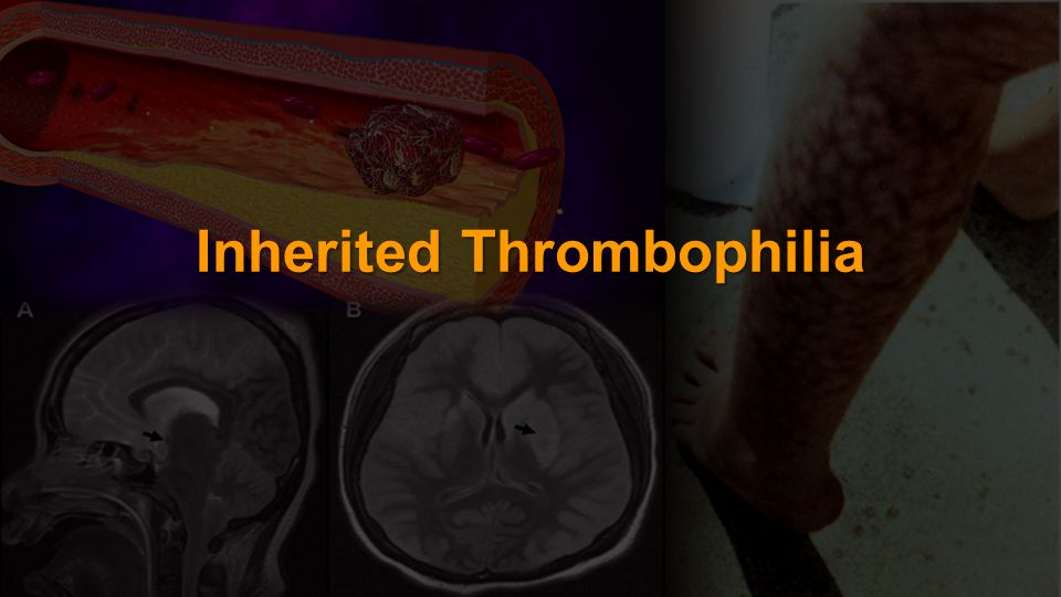 Inherited Thrombophilia