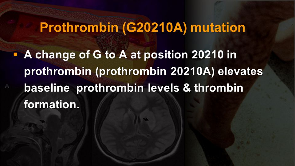 Prothrombin (G20210A) mutation
