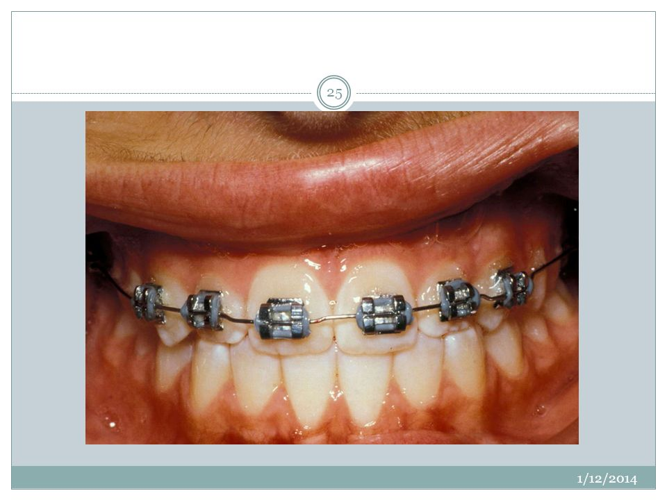 Brackets can movethe tooth bodily