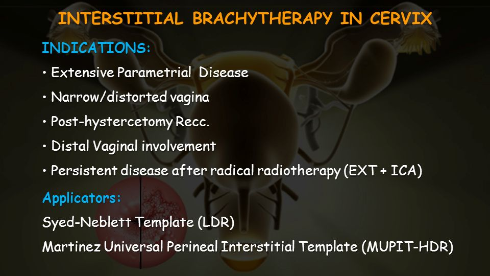 INTERSTITIAL BRACHYTHERAPY IN CERVIX