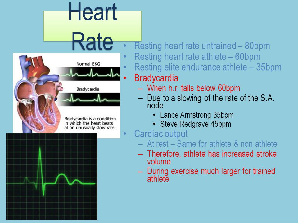 an analysis of effects of exercise on a human heart rate A failure of heart rate to rise or an abnormally slow increase during exercise (termed chronotropic incompetence) may indicate electrical conduction pathway disease an abnormal heart rate response during recovery is a strong predictor of all-cause mortality in a clinical population (meaning they have been referred.