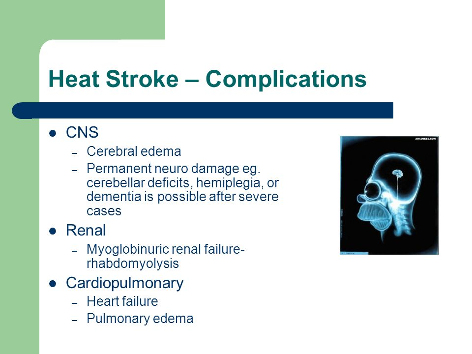 Heat Stroke – Complications