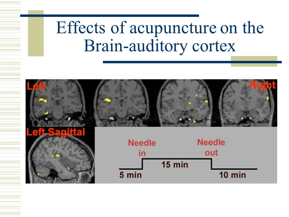 Effects of acupuncture on the Brain-auditory cortex