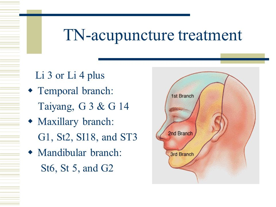TN-acupuncture treatment