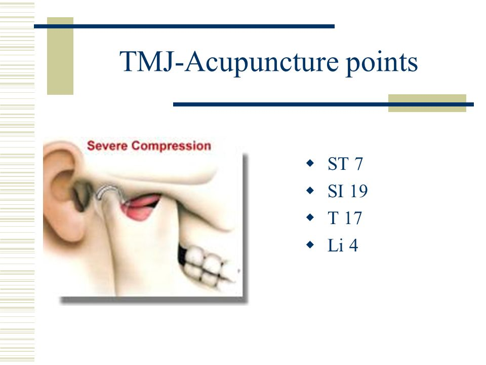 TMJ-Acupuncture points