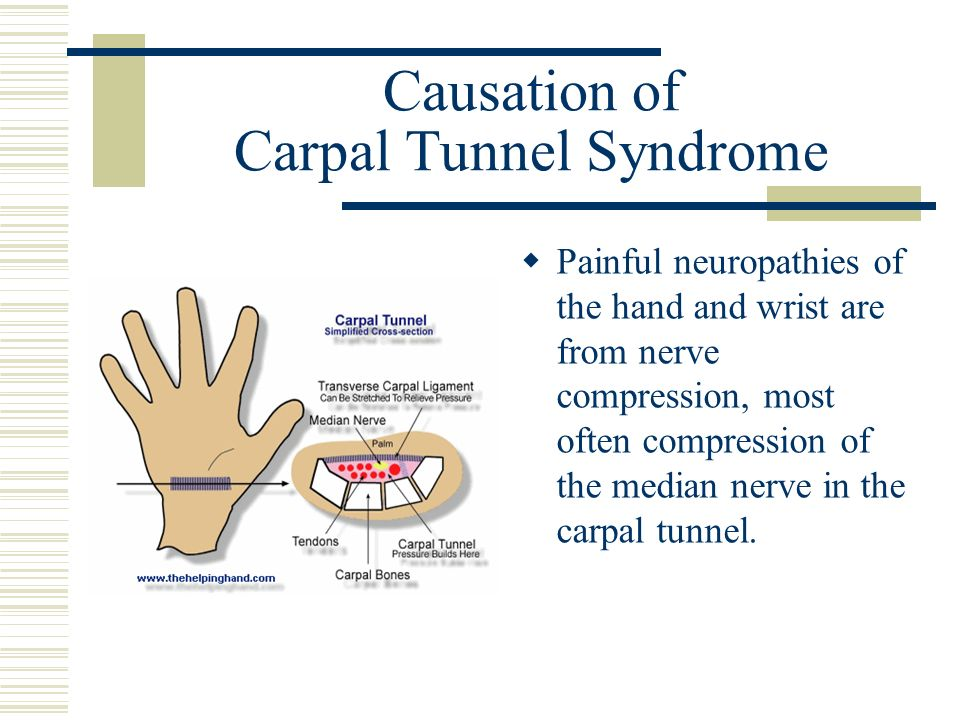Causation of Carpal Tunnel Syndrome