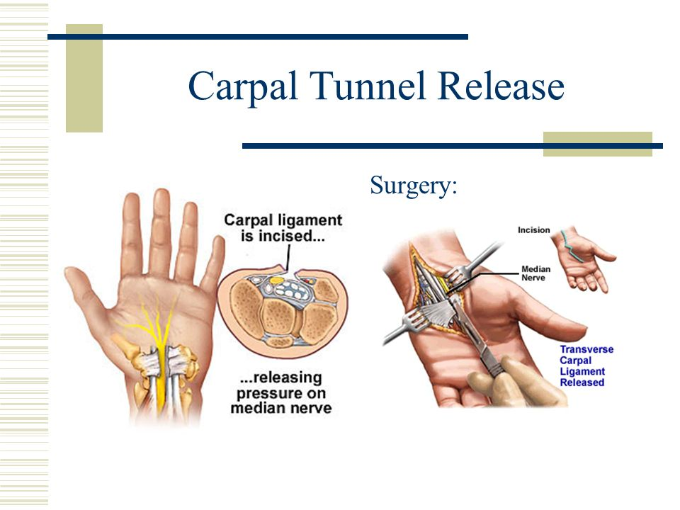 Carpal Tunnel Release Surgery: