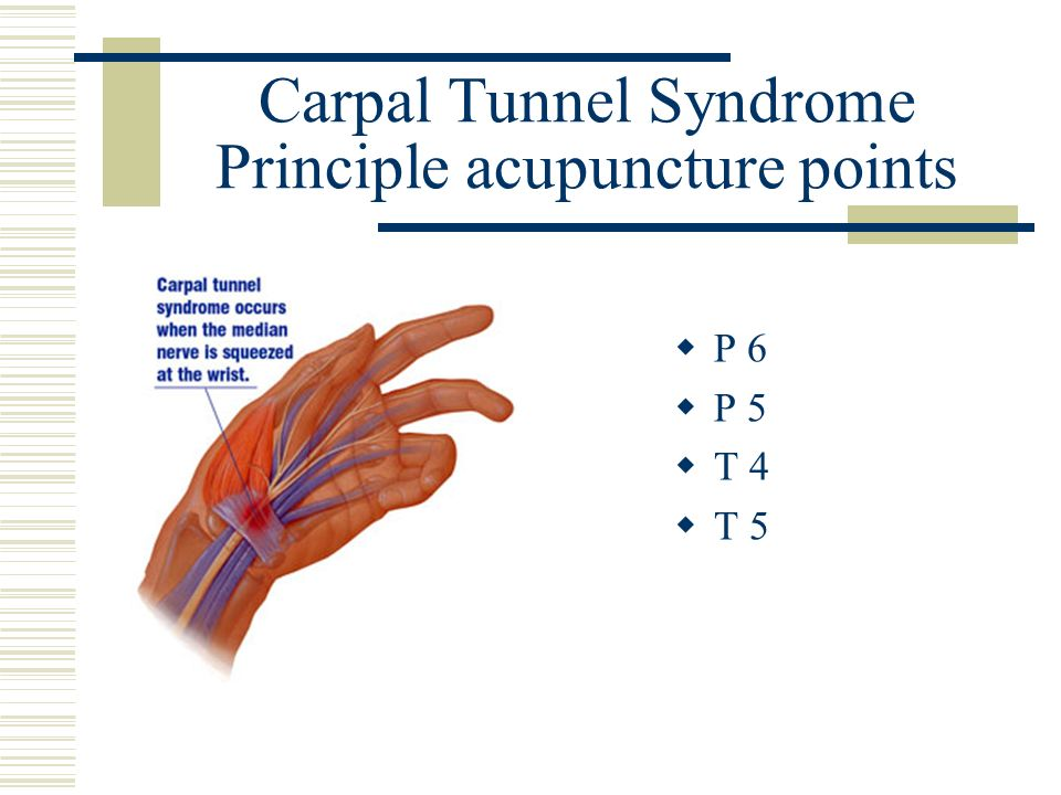 Carpal Tunnel Syndrome Principle acupuncture points