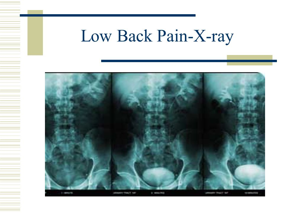 Low Back Pain-X-ray