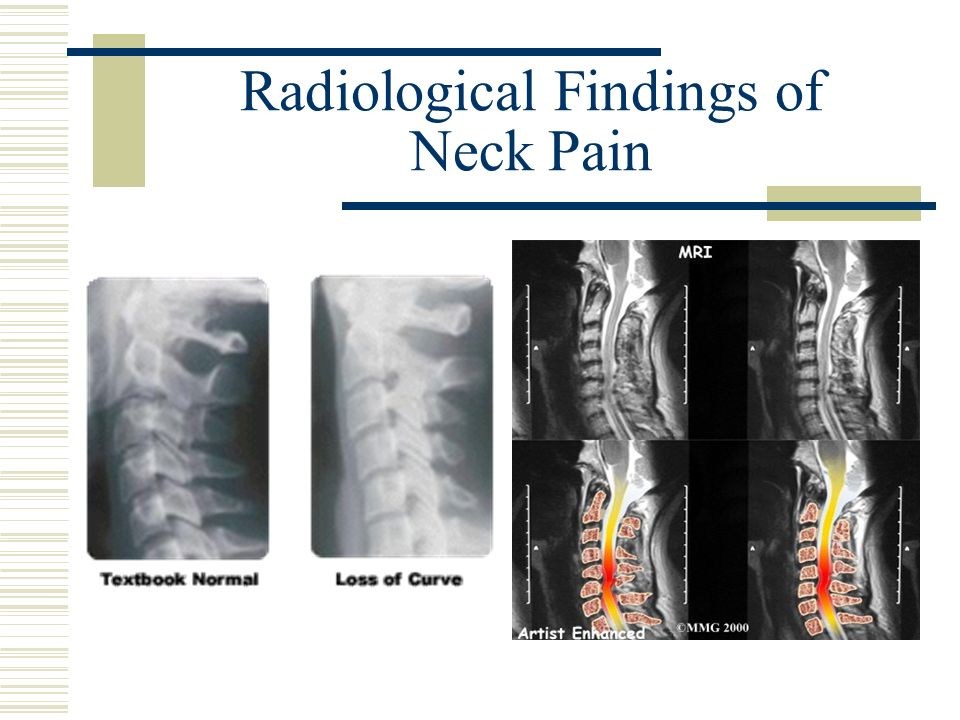 Radiological Findings of Neck Pain