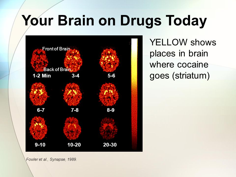 Your Brain on Drugs Today